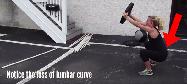Loss of Lumbar Curve